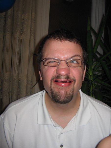 Okay... what do you av nuts look like...-yuky-face.jpg